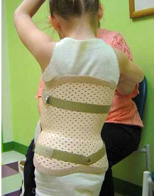 Common Scoliosis Questions 2